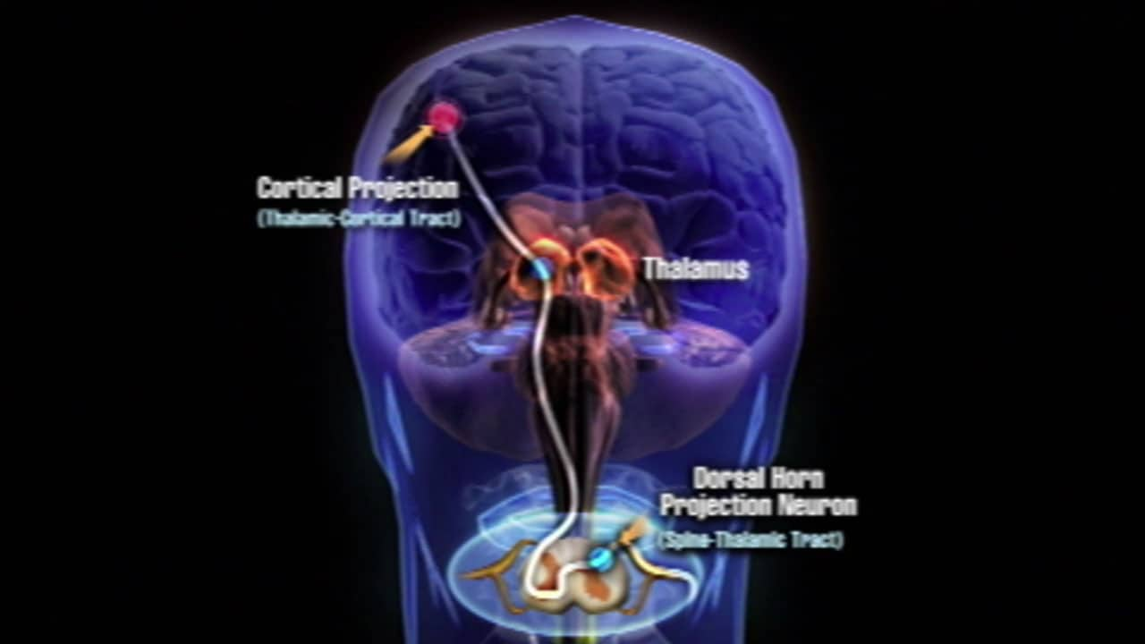 "Physicians Postgraduate Press – ""Pain in the Brain"" Animation/Webcast"